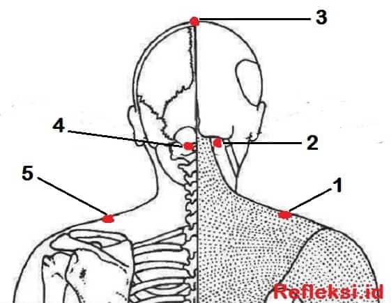 Titik Akupresur migrain