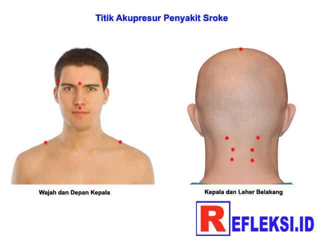 Titik akupresur stroke