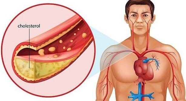 kolesterol berbahaya
