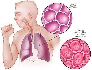 Terapi Refleksi Pneumonia