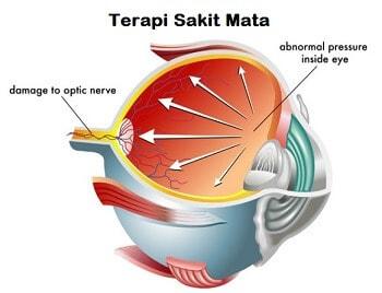 Terapi sakit mata