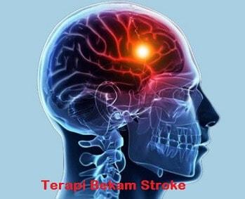 Terapi bekam untuk stroke