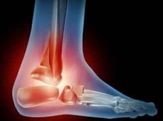 Terapi asam urat di kaki
