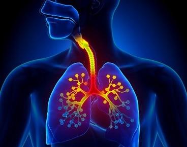 Cara mengobati bronkitis
