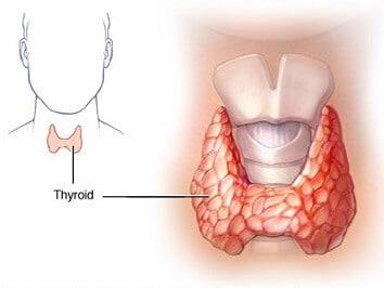 Terapi penyembuhan hipertiroid