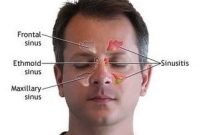 Terapi sinusitis