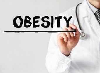 Bekam obesitas