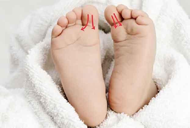 teknik pijat refleksi relaksasi pada bayi