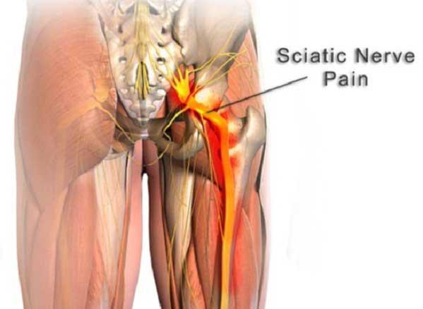 Pengobatan sciatica